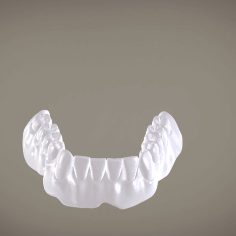 Screenshot_20.png Download OBJ file Full Dentures with Many Production Options  • 3D printing object, LabMagic3DCAD