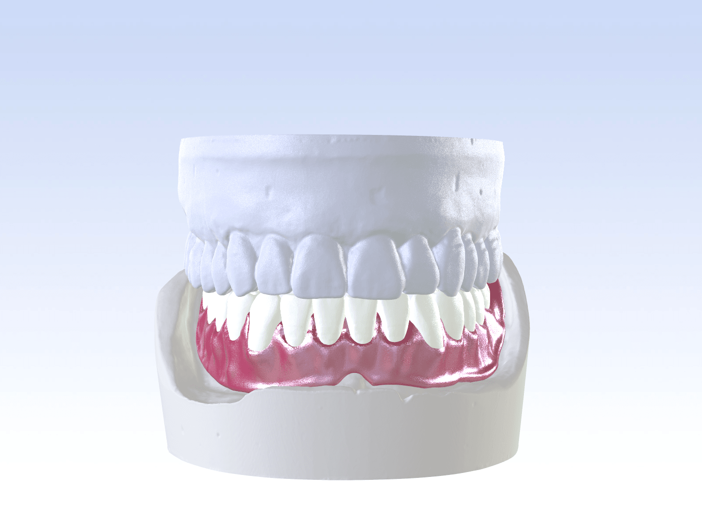 Digital Single Jaw Full Denture