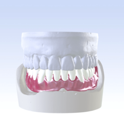 2.png Download OBJ file Digital Single Jaw Full Denture • 3D print model, LabMagic3DCAD