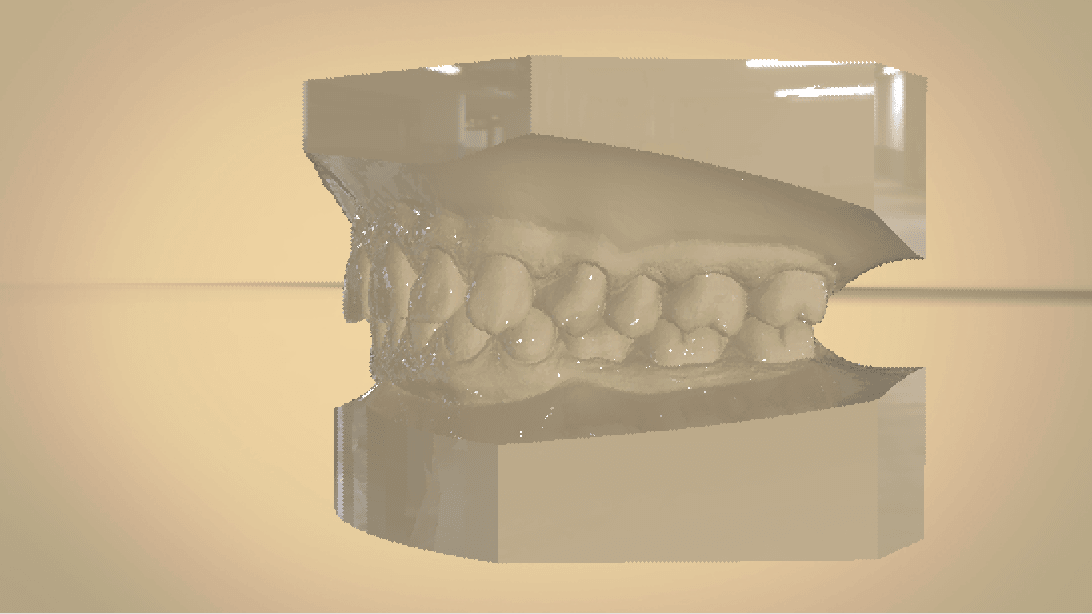 Screenshot_15.png Download OBJ file Digital Orthodontic Study Models with Virtual Bases • Design to 3D print, LabMagic3DCAD
