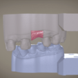 Screenshot_15.png Download OBJ file Digital Implant Model with Soft Tissue • 3D printing object, LabMagic3DCAD