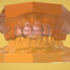 Télécharger fichier 3D Appareil numérique anti-migraineux, LabMagic3DCAD