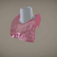 Screenshot_11.png Download OBJ file Digital Implant Model with Soft Tissue • 3D printing object, LabMagic3DCAD