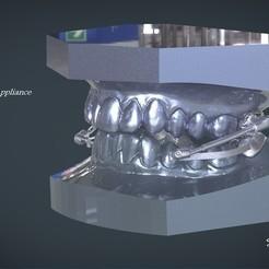 1.jpg Download OBJ file Digital Telescopic Herbst Appliance • 3D printable object, LabMagic3DCAD