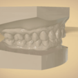 Screenshot_29.png Download OBJ file Digital Orthodontic Study Models with Virtual Bases • Design to 3D print, LabMagic3DCAD