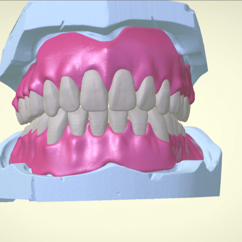 Screenshot_17.png Download OBJ file Full Dentures with Many Production Options  • 3D printing object, LabMagic3DCAD