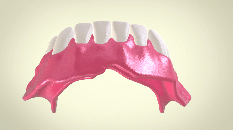 Screenshot_13.png Download OBJ file Full Dentures with Many Production Options  • 3D printing object, LabMagic3DCAD