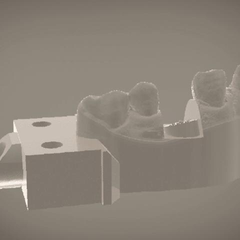 Screenshot_12.png Download OBJ file Digital Implant Model with Soft Tissue • 3D printing object, LabMagic3DCAD