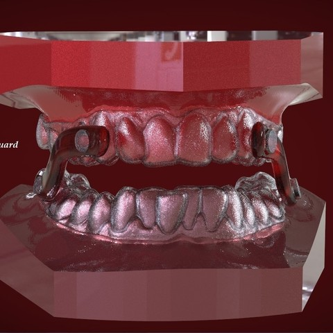 Download OBJ file Digital Sleep Apnea Mouthguard • Model to 3D print, LabMagic3DCAD