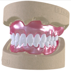 Download STL file Digital Full Dentures with Combined Glue-in Teeth Arch, LabMagic3DCAD