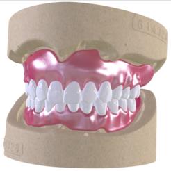 Impresiones 3D Dentaduras postizas digitales con arco dental combinado con pegamento, LabMagic3DCAD