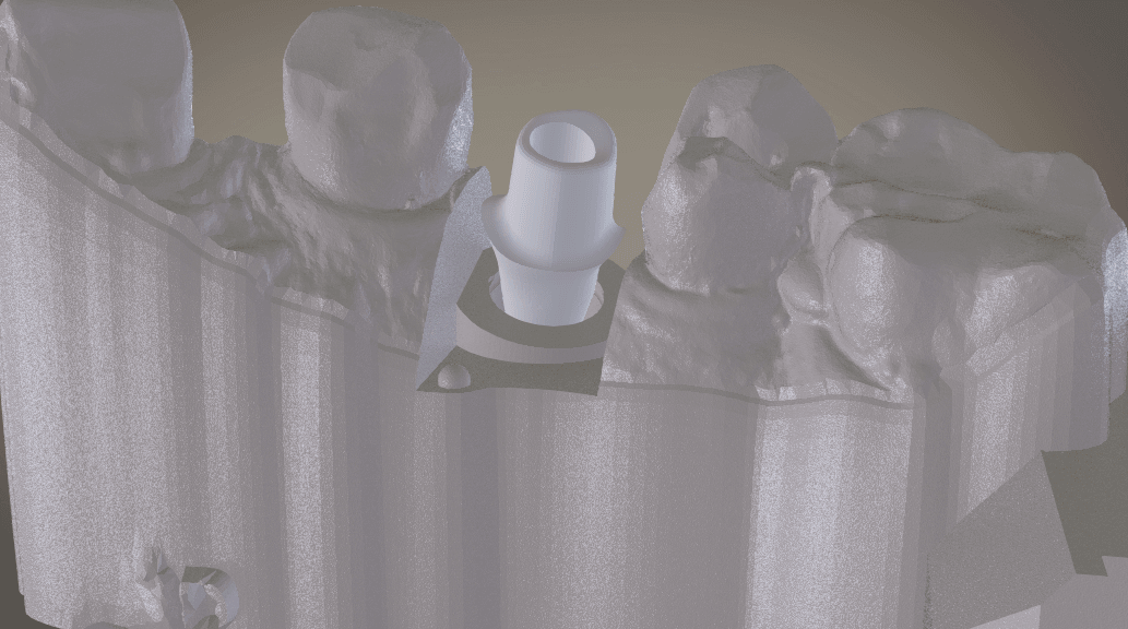 Screenshot_10.png Download OBJ file Digital Implant Model with Soft Tissue • 3D printing object, LabMagic3DCAD