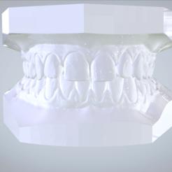 1.png Download OBJ file Digital ABO Planning Study Models • 3D print design, LabMagic3DCAD
