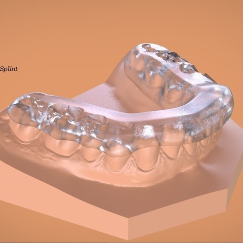 Download OBJ file Digital Mandibular Tanner Splint • 3D printer template, LabMagic3DCAD