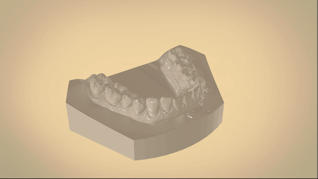 Screenshot_22.png Download OBJ file Digital Orthodontic Study Models with Virtual Bases • Design to 3D print, LabMagic3DCAD