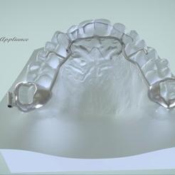 Télécharger fichier imprimante 3D Appareil dentaire Rick-a-Nator 3D, LabMagic3DCAD