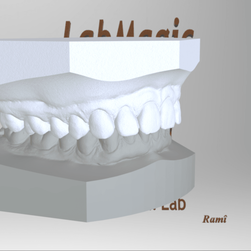 Screenshot_8.png Download OBJ file Digital Orthodontic Study Models with Virtual Bases • Design to 3D print, LabMagic3DCAD