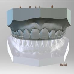 Screenshot_9.png Download OBJ file Digital Bite-guard Appliance • Object to 3D print, LabMagic3DCAD