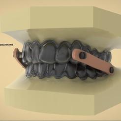 Télécharger fichier STL Appareil numérique d'avancement élastique de la mandibule, LabMagic3DCAD