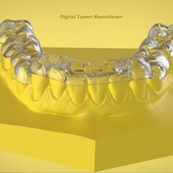 Télécharger objet 3D Attelle de repositionnement pour orthophoniste numérique, LabMagic3DCAD