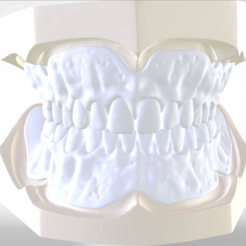 1.png Download OBJ file Digital Try-in Full Dentures for Injection Molding  • 3D printing model, LabMagic3DCAD