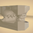 Screenshot_18.png Download OBJ file Digital Orthodontic Study Models with Virtual Bases • Design to 3D print, LabMagic3DCAD
