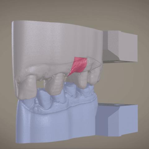 Screenshot_1.png Download OBJ file Digital Implant Model with Soft Tissue • 3D printing object, LabMagic3DCAD