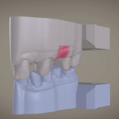 stl Digital Implant Model with Soft Tissue, LabMagic3DCAD