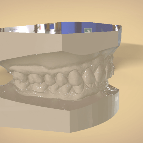 Screenshot_16.png Download OBJ file Digital Orthodontic Study Models with Virtual Bases • Design to 3D print, LabMagic3DCAD