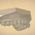 Screenshot_9.png Download OBJ file Digital Orthodontic Study Models with Virtual Bases • Design to 3D print, LabMagic3DCAD