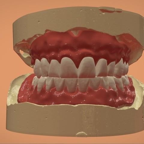 Download OBJ file Digital Complete Dentures • 3D printable template, LabMagic3DCAD