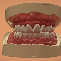 1.jpg Download OBJ file Digital Complete Dentures • 3D printable template, LabMagic3DCAD