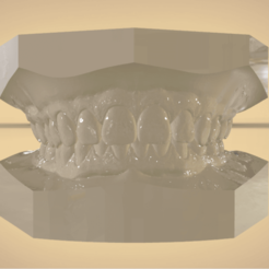 Screenshot_14.png Download OBJ file Digital Orthodontic Study Models with Virtual Bases • Design to 3D print, LabMagic3DCAD