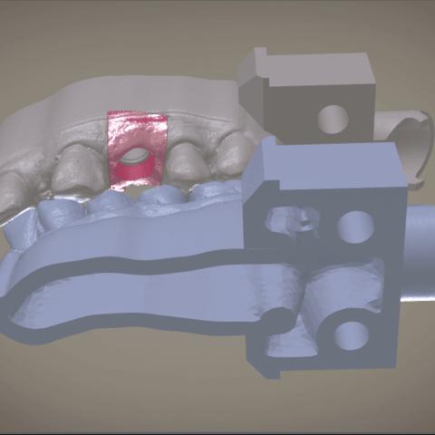 Screenshot_4.png Download OBJ file Digital Implant Model with Soft Tissue • 3D printing object, LabMagic3DCAD