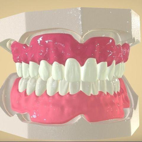 Download STL file Digital Full Dentures • 3D printer template, LabMagic3DCAD