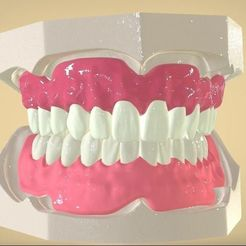 STL Digital Full Dentures, LabMagic3DCAD