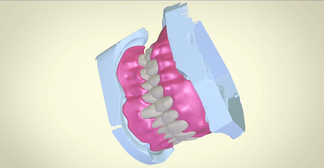 Screenshot_16.png Download OBJ file Full Dentures with Many Production Options  • 3D printing object, LabMagic3DCAD
