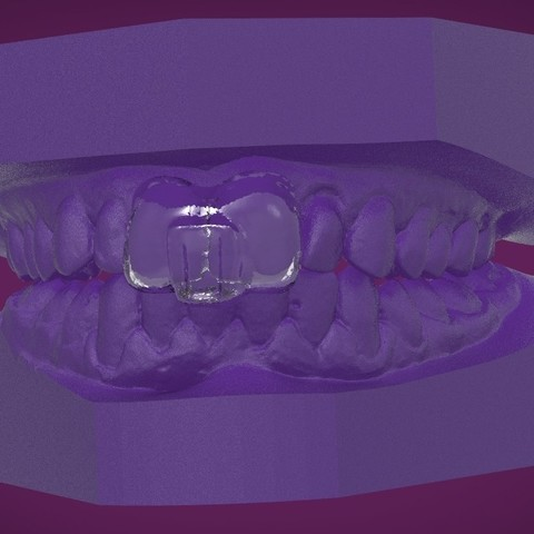 Download OBJ file Digital Sleep Clench Inhibitor • 3D printable design, LabMagic3DCAD
