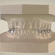 Download OBJ file Ortho Superior Repositioner Splint • Template to 3D print, LabMagic3DCAD