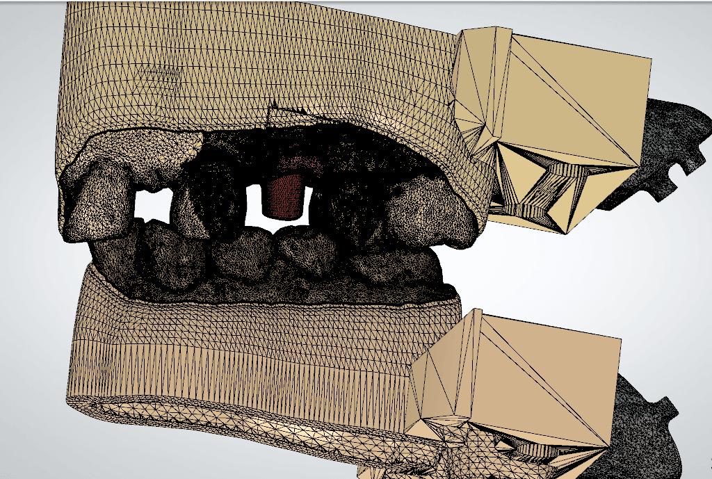 Screenshot_17.png Download OBJ file Digital Implant Model with Soft Tissue • 3D printing object, LabMagic3DCAD