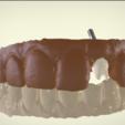Download STL file Digital Customized Abutment • 3D printer model, LabMagic3DCAD