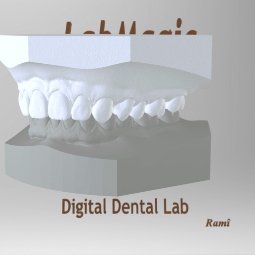 Screenshot_7.png Download OBJ file Digital Orthodontic Study Models with Virtual Bases • Design to 3D print, LabMagic3DCAD