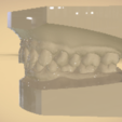Screenshot_31.png Download OBJ file Digital Orthodontic Study Models with Virtual Bases • Design to 3D print, LabMagic3DCAD