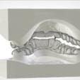 Download OBJ file Digital Dental B Splints • 3D printable template, LabMagic3DCAD