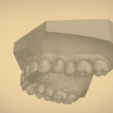 Screenshot_10.png Download OBJ file Digital Orthodontic Study Models with Virtual Bases • Design to 3D print, LabMagic3DCAD