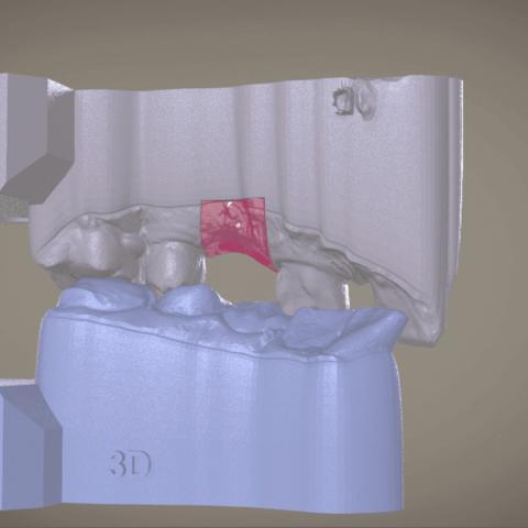 Screenshot_2.png Download OBJ file Digital Implant Model with Soft Tissue • 3D printing object, LabMagic3DCAD