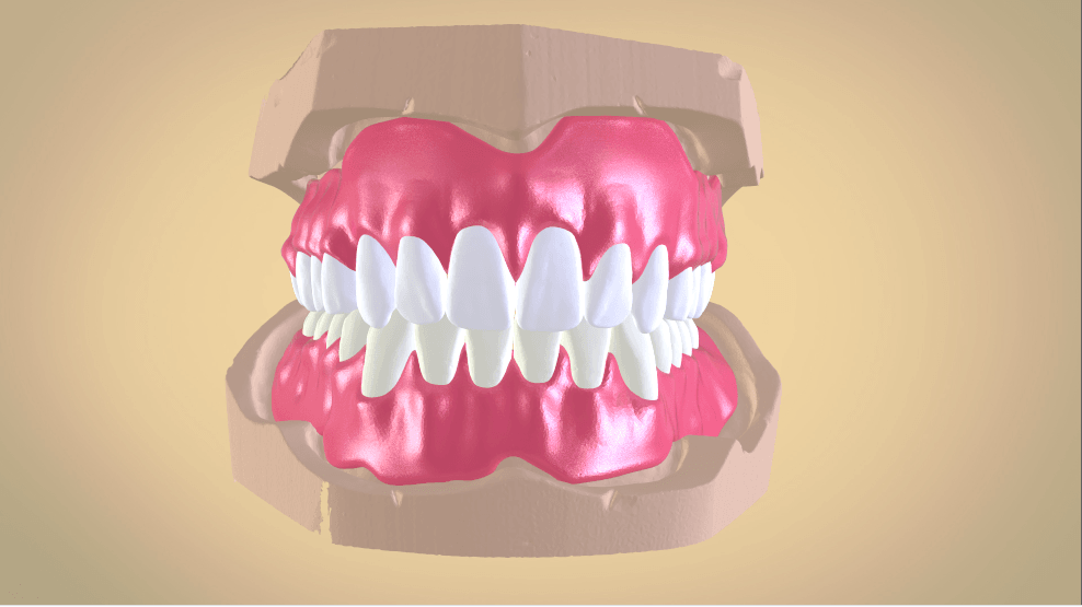 Screenshot_1.png Download OBJ file Full Dentures with Many Production Options  • 3D printing object, LabMagic3DCAD