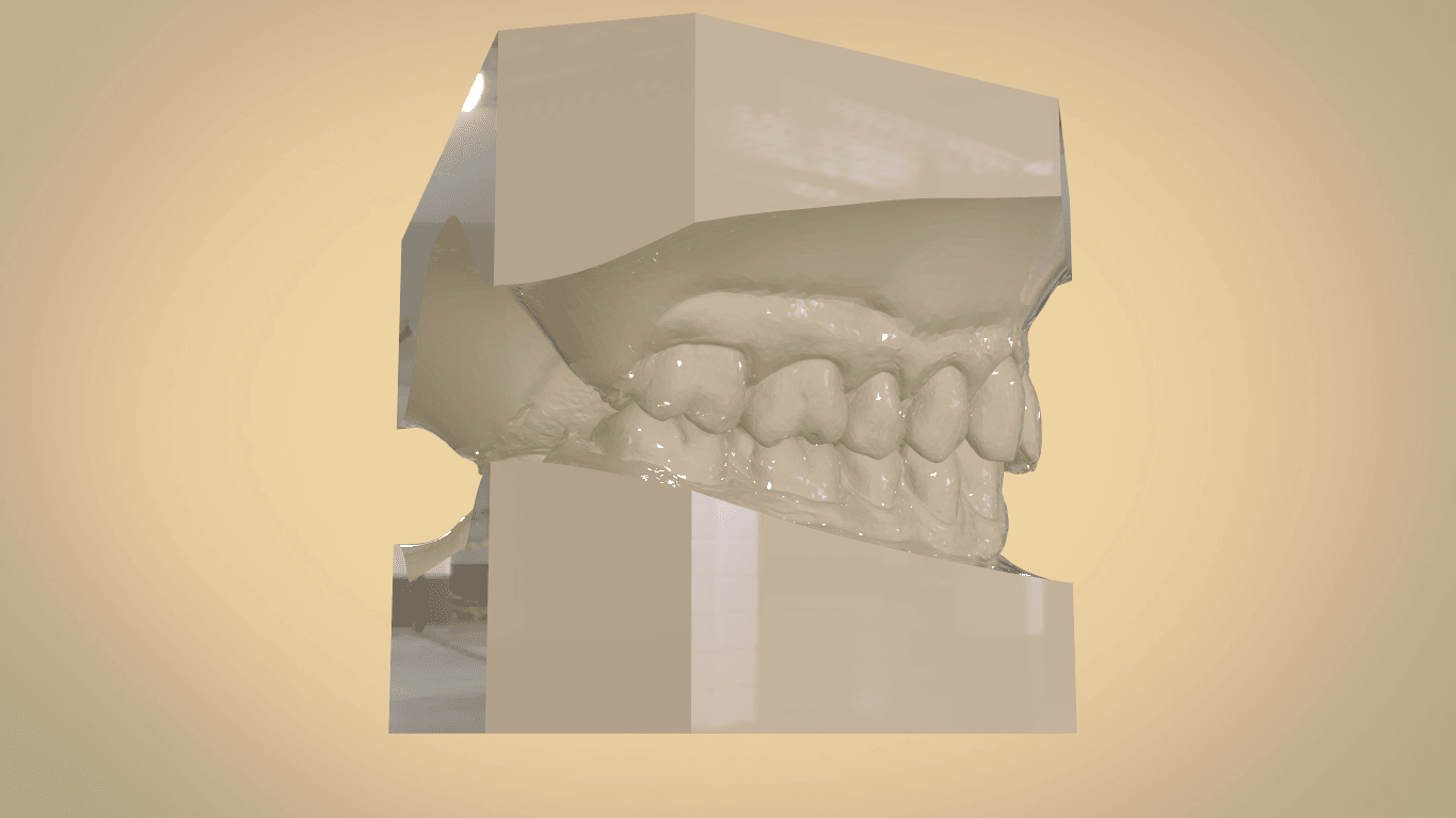 Screenshot_33.png Download OBJ file Digital Orthodontic Study Models with Virtual Bases • Design to 3D print, LabMagic3DCAD