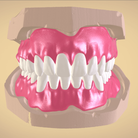 Screenshot_2.png Download OBJ file Full Dentures with Many Production Options  • 3D printing object, LabMagic3DCAD