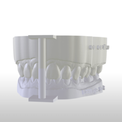 STL file Digital Dental Unsectioned Study Model , LabMagic3DCAD